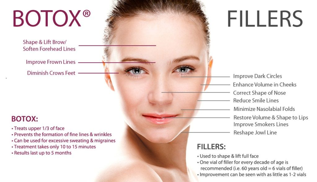 Infographic: How Botox | Esthetics❤ | Botox fillers, Botox