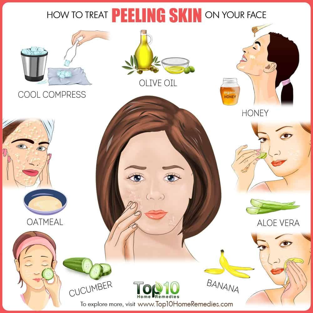 How To Treat Peeling Skin On Face Top 10 Home Remedies Peeling Skin Natural Skin Care Beauty Skin Care