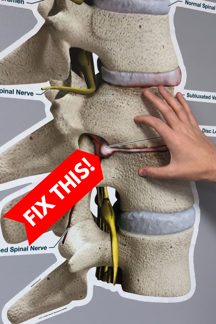 How to Fix a Bulging Disc in Your Lower Back | REL