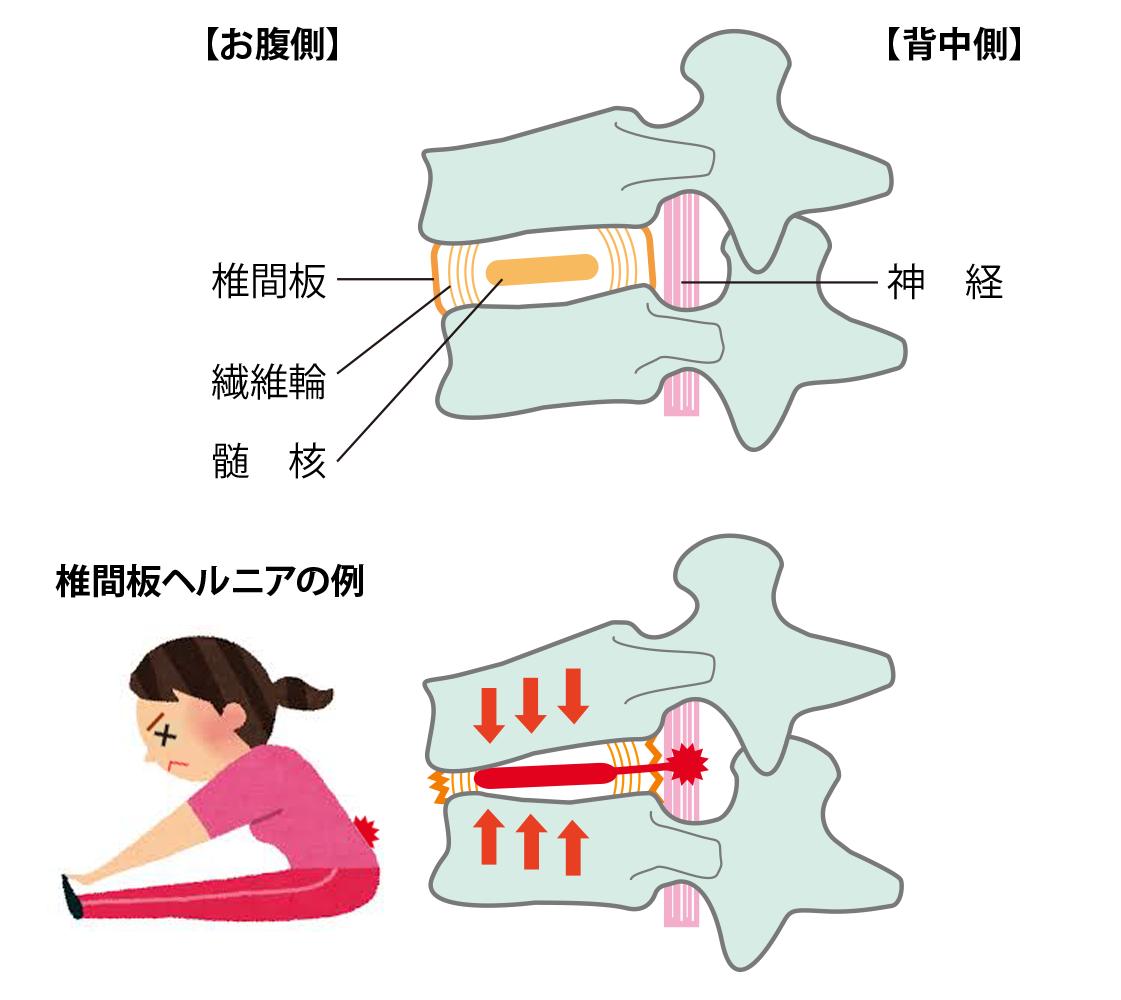 治療 坐骨 神経痛