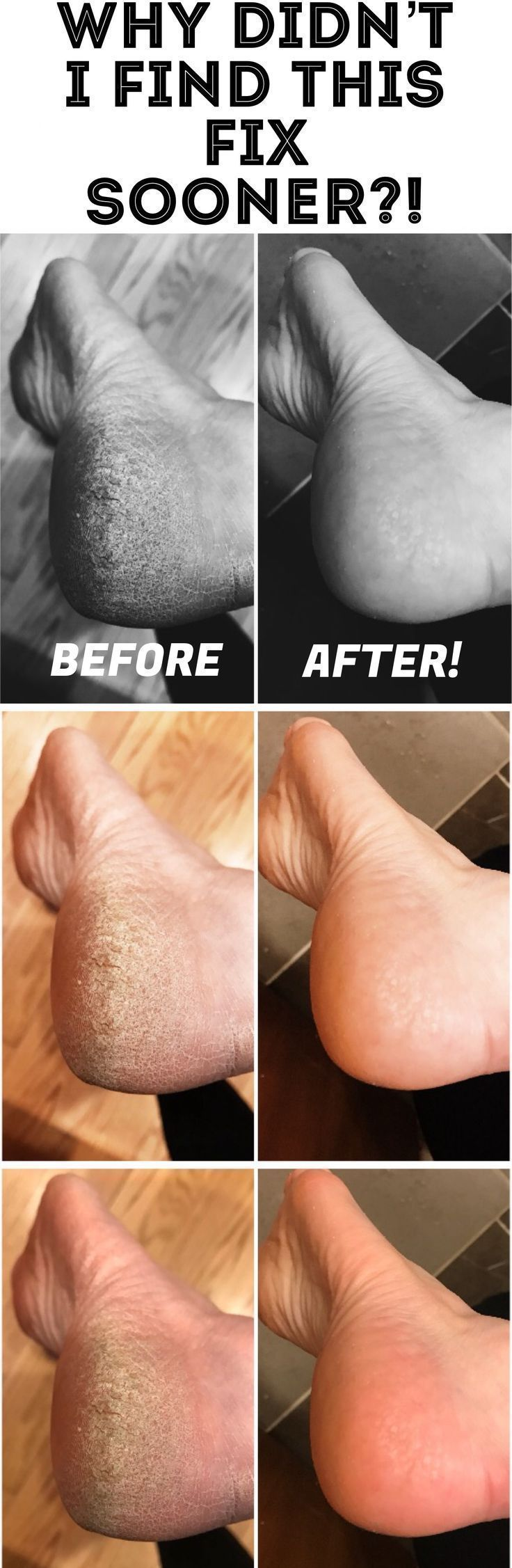 Best fix for calluses how i fixed my dry feet dry