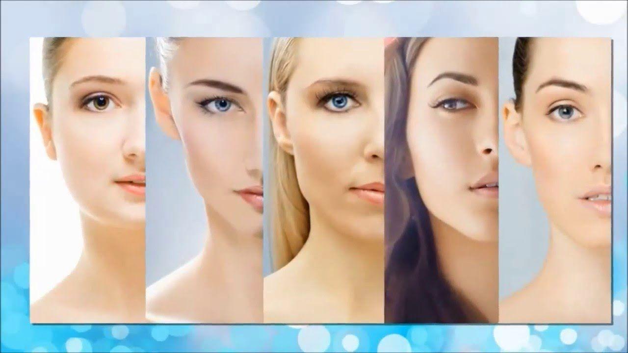 single needling acne scars