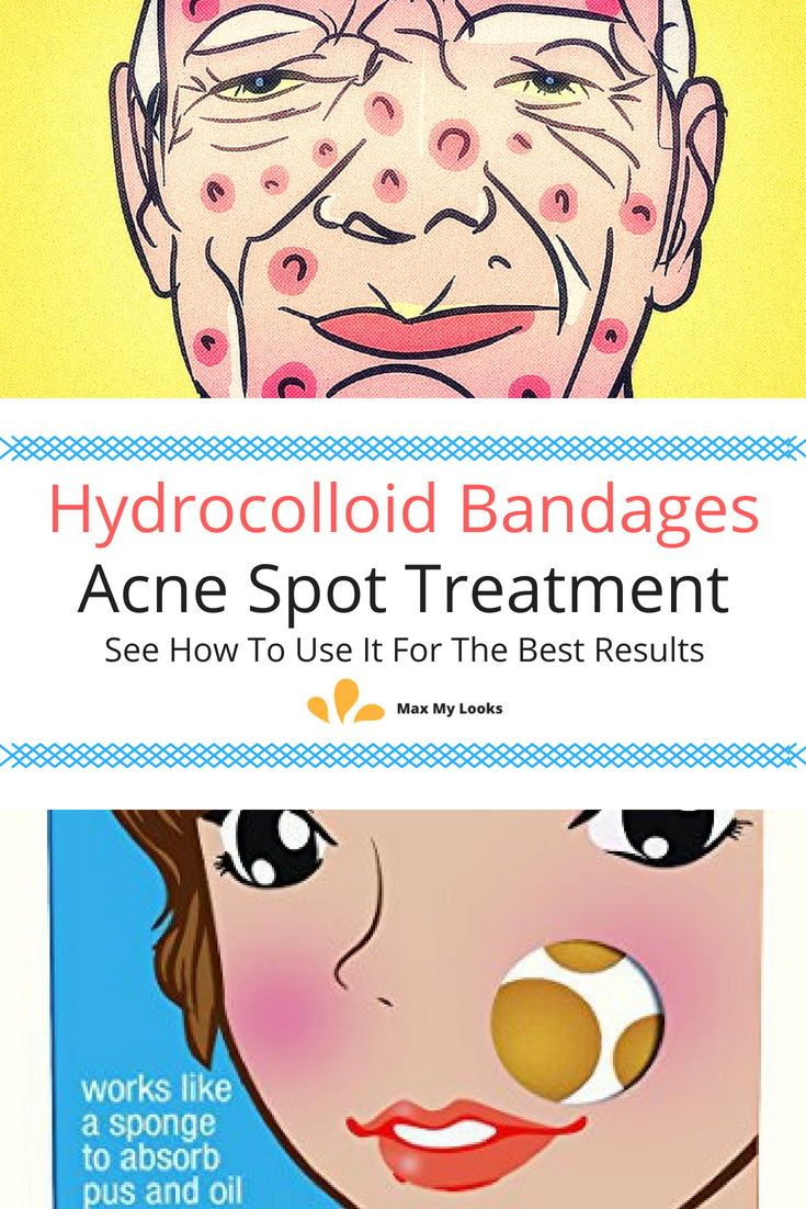 Acne spot treatments review solutions to vanish pimples