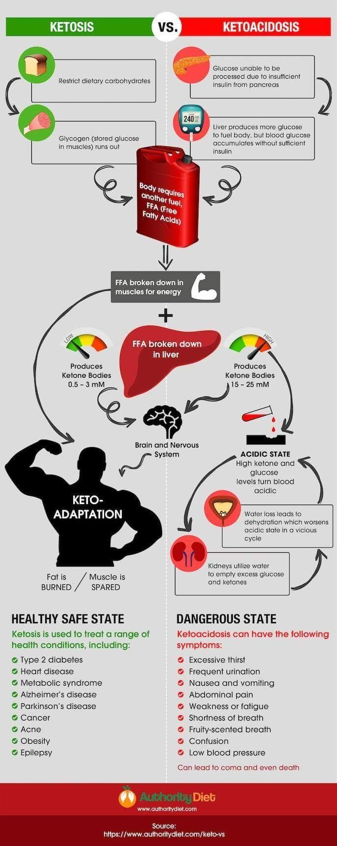 Ketosis Vs Ketoacidosis Infographic With Images Ketosis