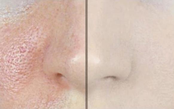 peau grasse pores dilates solution