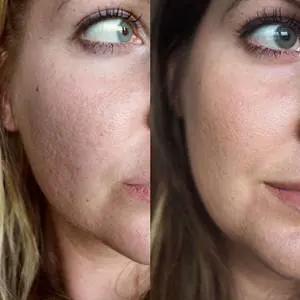 التقشير الكميائى للوجه Chemical Peeling Of The Face من الاجراءات التجميلية التى تستخدم لتحسين صورة البشرة و جعلها اكثر نعومة و اقل تجاعيد Face Chemical