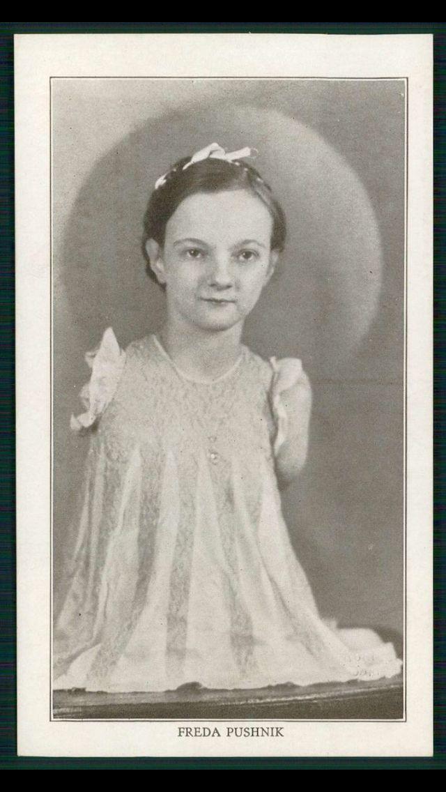Freida Pushnik, living torso promotional pitchcard from Ripley's Museum c. 1910