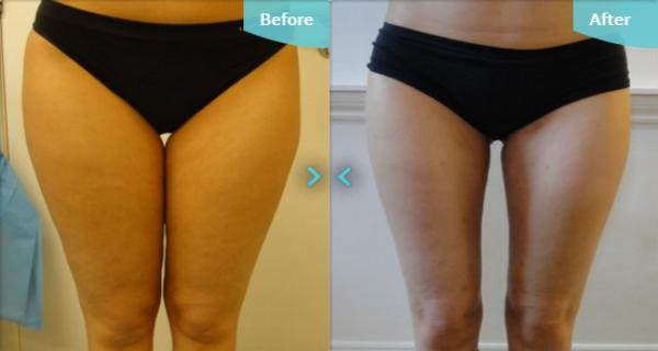 Saran Wrap Around Thighs To Lose Weight