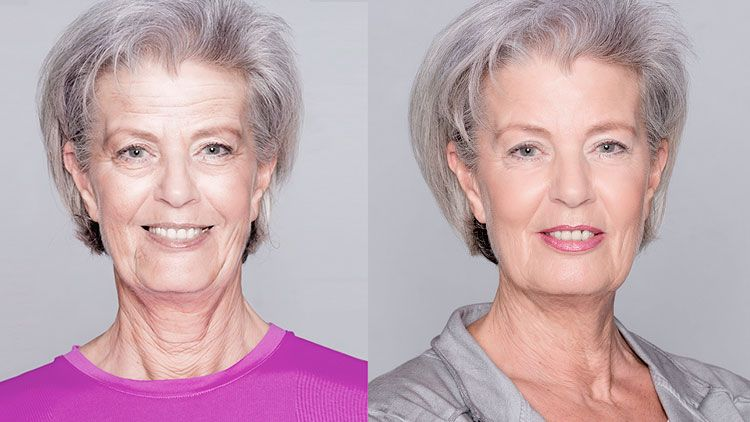 Amazing New Non Surgical Technique Lifts Years Off Your Face