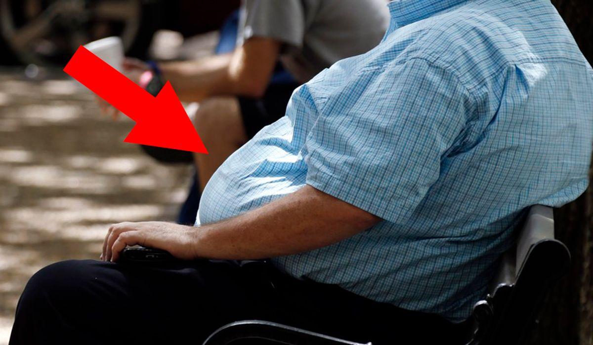 Krankhafte Fettleibigkeit verlieren Gewicht