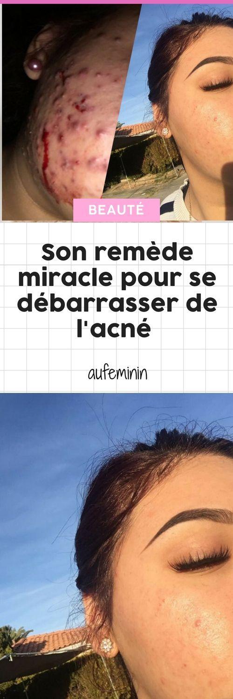 0d8b6cf09be1 Son remède 100% naturel pour se débarrasser de l acné est un miracle  (Photos)  remède  astuce  secret  beauté  acne  boutons  thevert  miel   aufeminin