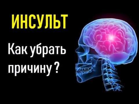 инсульт причина