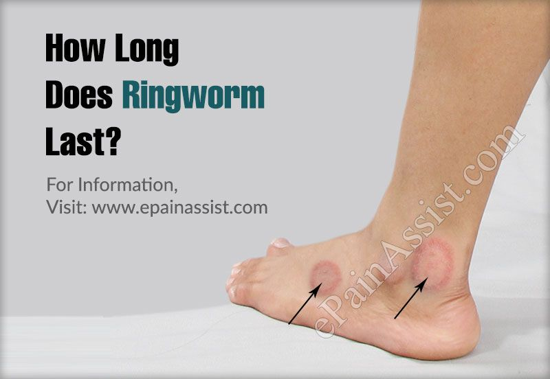 How Long Does Ringworm Last What Are The Home Remedies To Get