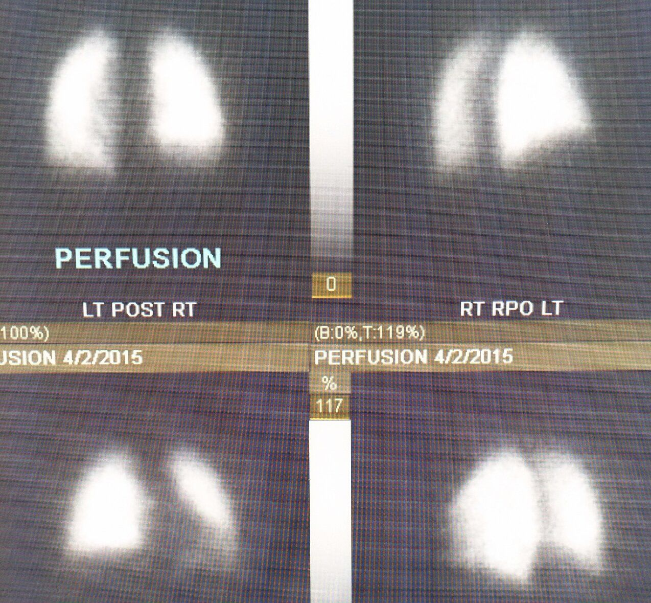 Nuclear #medicine, #V/Q #scan uses #radioactive #isotopes to