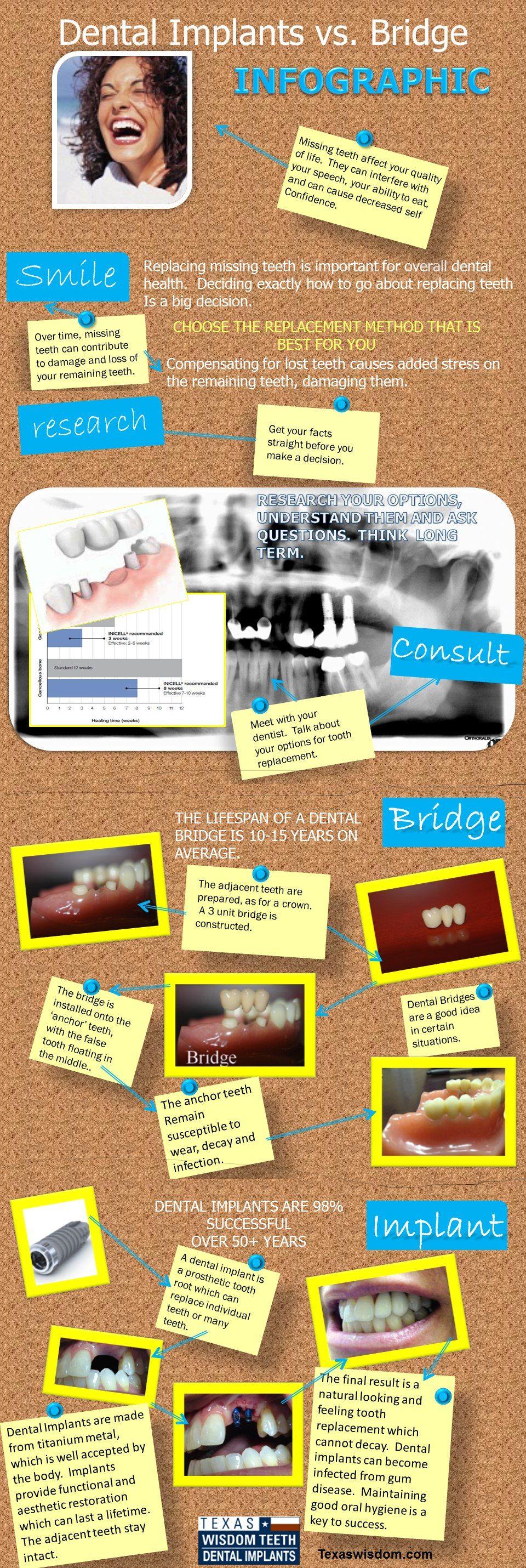 http://blog.texaswisdom.com/wp-content/uploads/2012/10/Implant-vs-Bridge-Infographic-3.jpg
