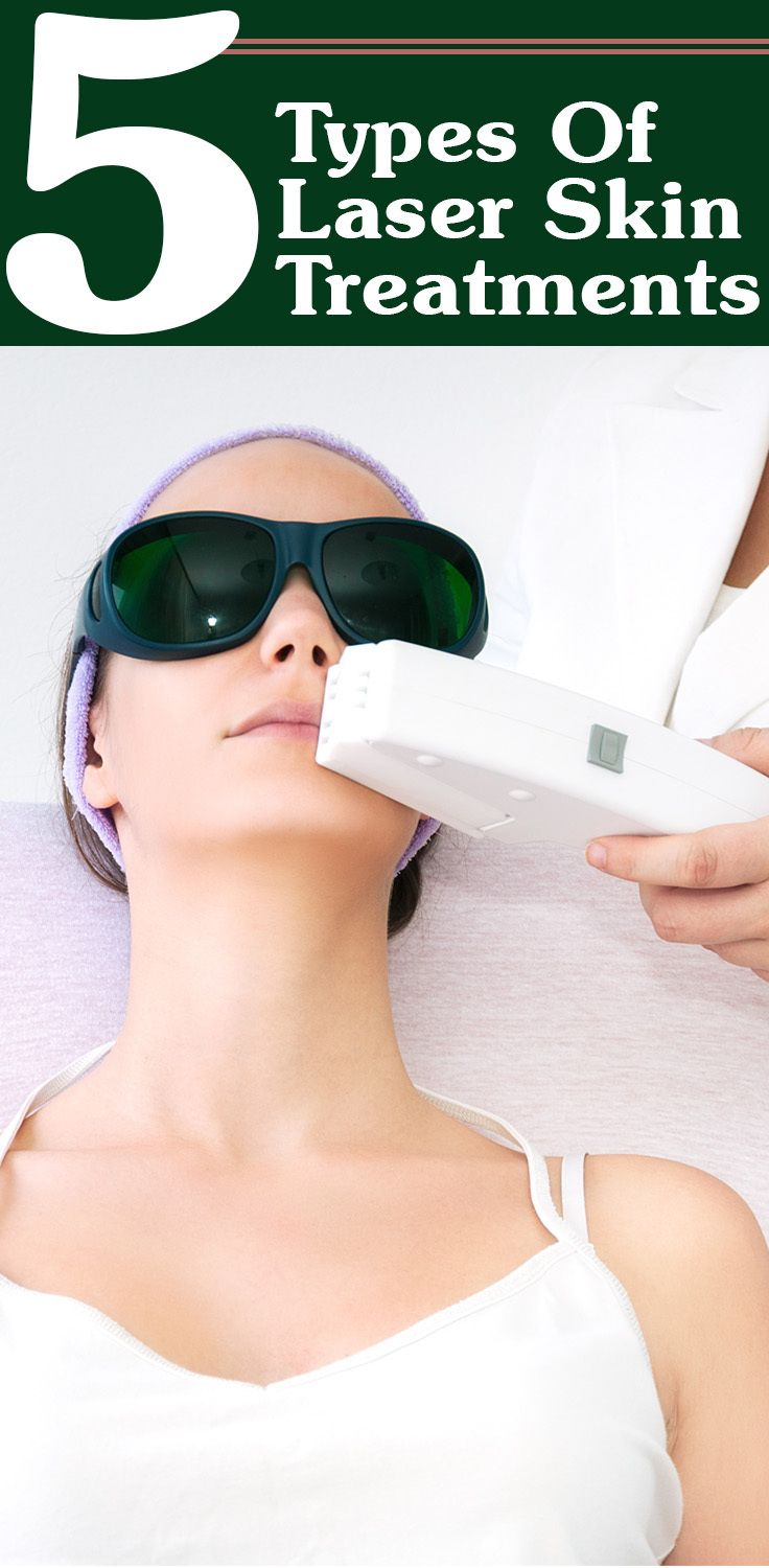 5 Types Of Laser Skin Treatments And Their Benefits Laser Skin Treatment Laser Facial Laser Skin