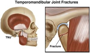 Jaw Fracture Temporomandibular Joint Fracture Denti