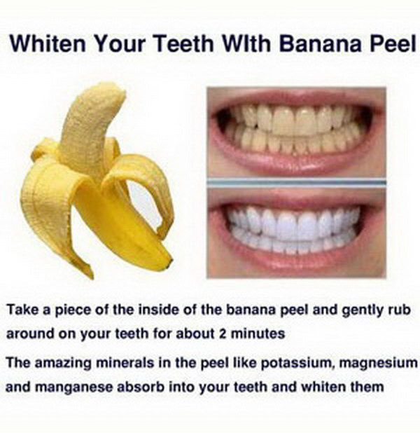 15 Natural Ways To Whiten Your Teeth Homemade Teeth Whiteners