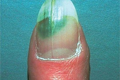 Difference Between Toenail Fungus And Green Nail Syndrome Toenail Fungus Green Nail Syndrome Nail Fungus Treatment