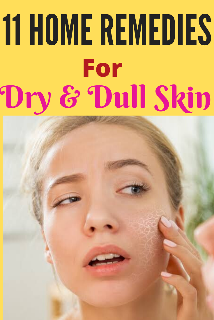 11 Natural Home Remedies For Dry Skin On Face Overnight Trabeauli Dry Skin On Face Dull Skin Remedies Dry Skin Remedies