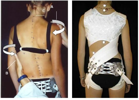 SpineCor - The First and Only Dynamic Scoliosis Brace | Scoliosis ...