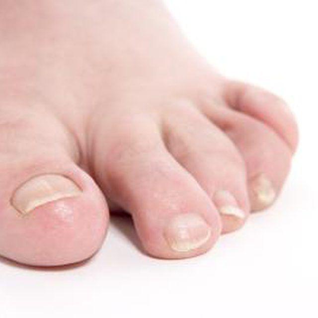 Epsom Salt Treatments for Ingrown Toenails | Foot Care | Pinterest ...