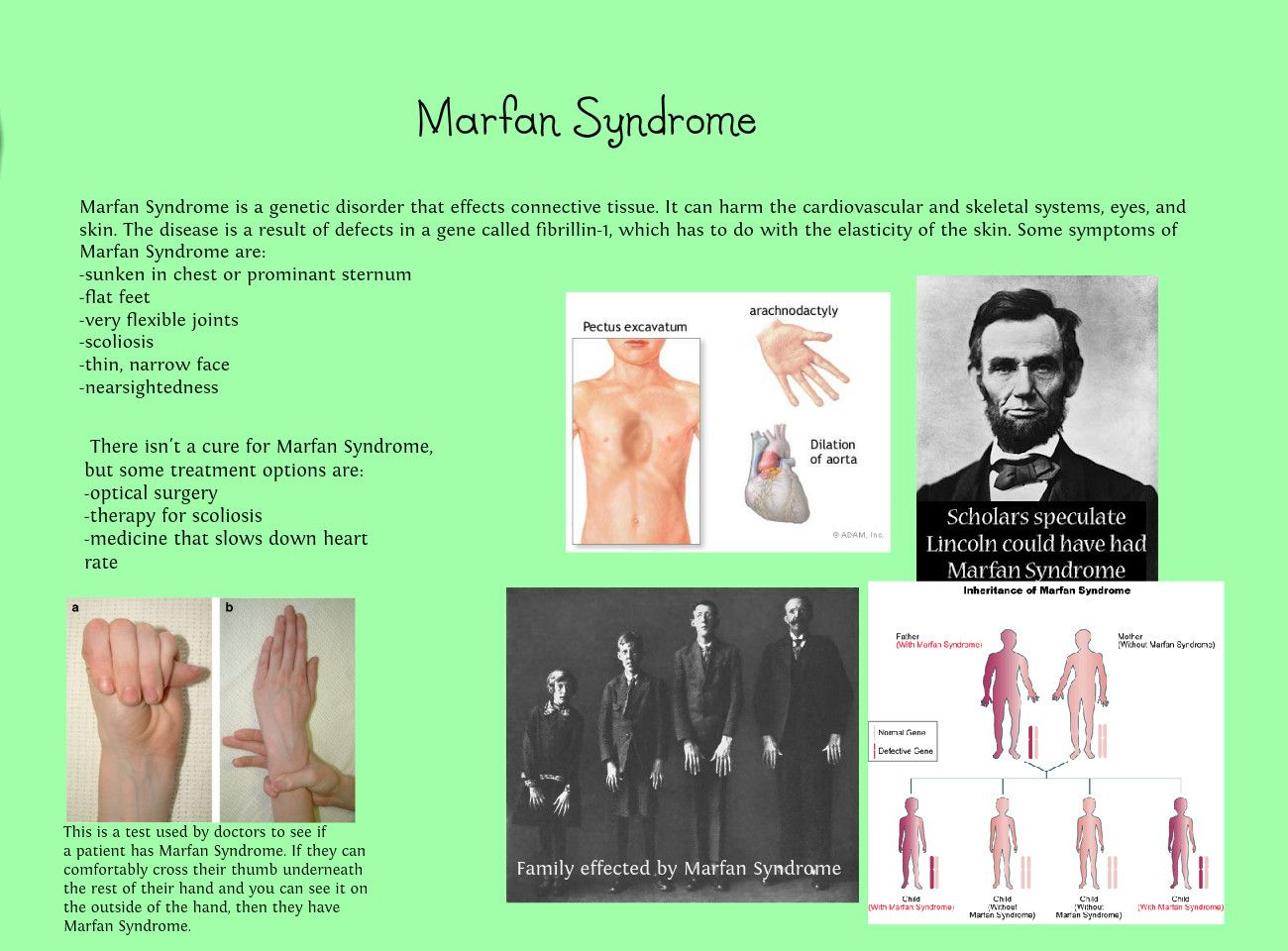 name my disease marfan syndrome Is marfan syndrome a genetic disease  bones are weak my testimony my feet are the wrong shape i take hospital boots  what is another name for marfan syndrome.