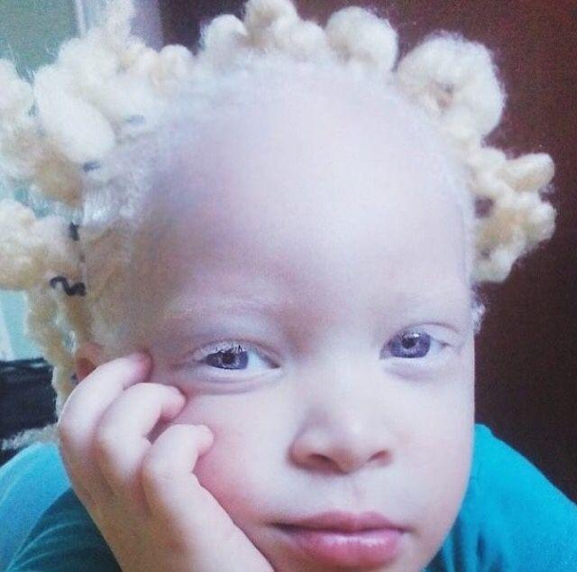 Albinismo!! <3