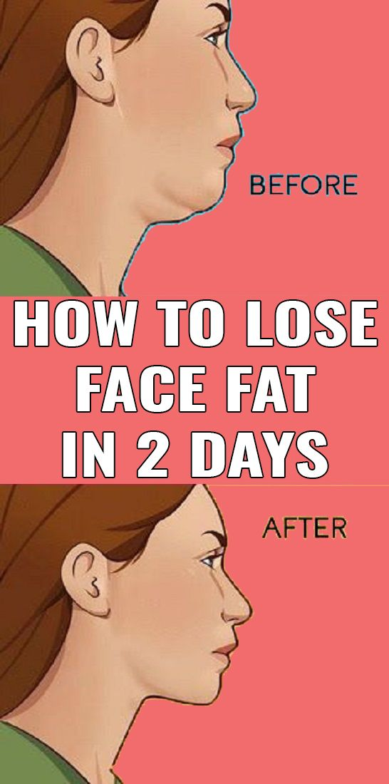 How to Lose Face Fat in 2 days (7 Proven Exercises and Home remedies)