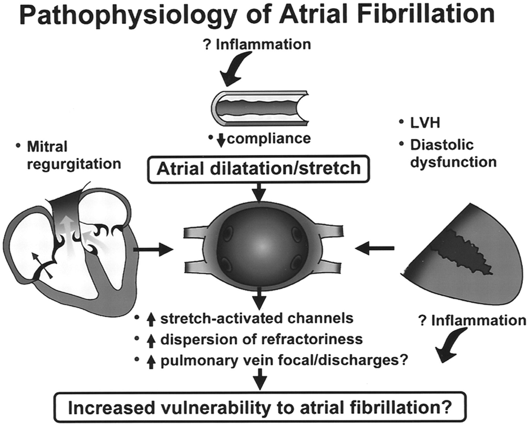 patho of a fib | The changing epidemiology of non-valvular atrial fibrillation: the ...