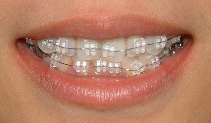 White Braces Braces Colors Pinterest Braces Braces