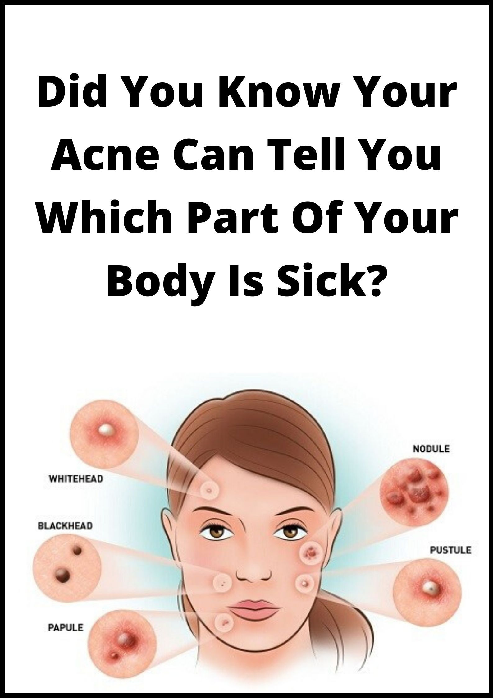 Did You Know Your Acne Can Tell You Which Part Of Your Body Is Sick In 2020 Told You So Acne Pimple Treatment