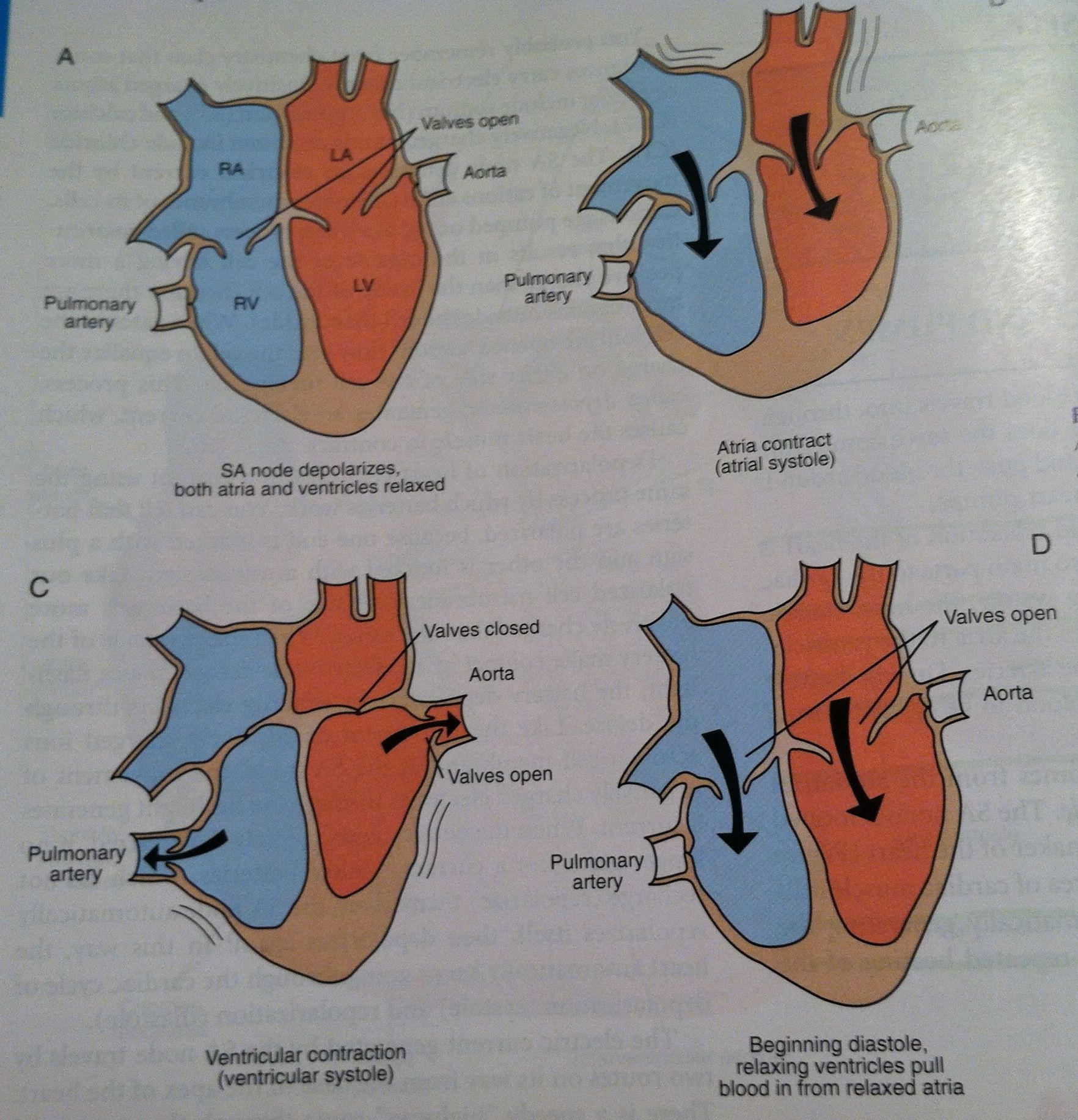 Flow through heart chambers from Colville and Bassert Clinical ...
