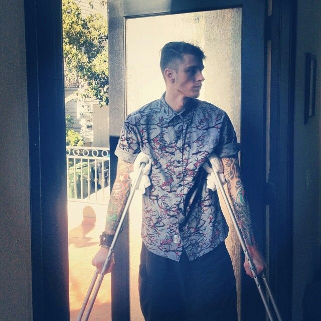 Hes sooo sexy even on crutches lol