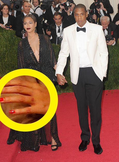 Beyonce Removes Jay Z Wedding Ring Finger Tattoo: Symbolized Eternal Love    This Relationship Is Over!