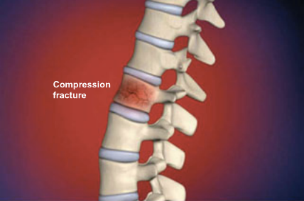 Compression fractures can be caused by traumatic injury, such as a hard fall. But many cases of compression fracture develop as a result of osteoporosis. A person with osteoporosis may develop compression fractures during routine daily activities, and may not realize the extent of their injuries until they experience severe deformity of the spine. For more information, please visit our website at http://www.dl-ortho.com/treatments/spine/.
