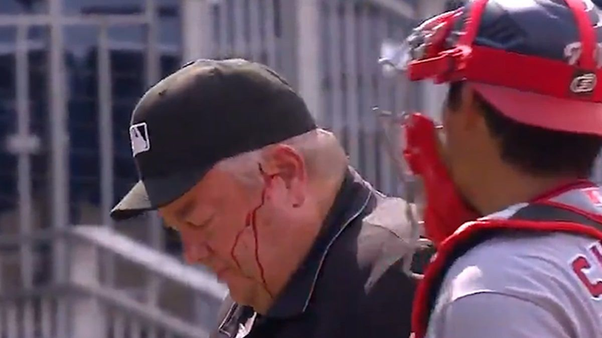 Mlb Ump Joe West Bloodied After Accidental Bat To Head Leaves Game Vpchurchill In 2020 Blue Jays Game Toronto Star Mlb