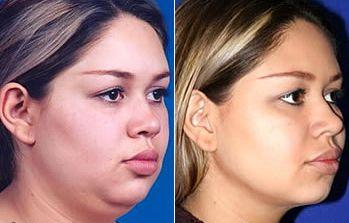 Cirugia de bolsas de bichat antes y despues de adelgazar