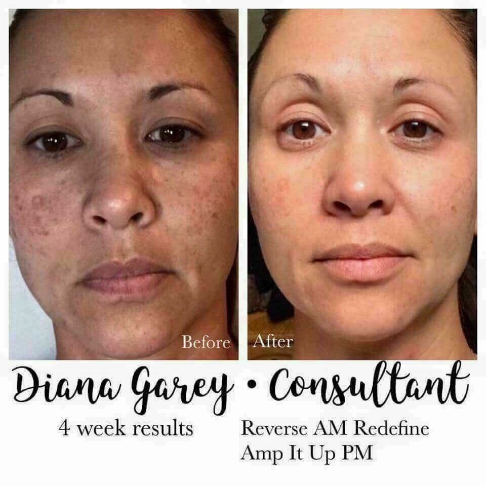 Amazing results!! T Look at her results in just four weeks! Not only getting amazing skin, she is building a successful business! AND YOU???