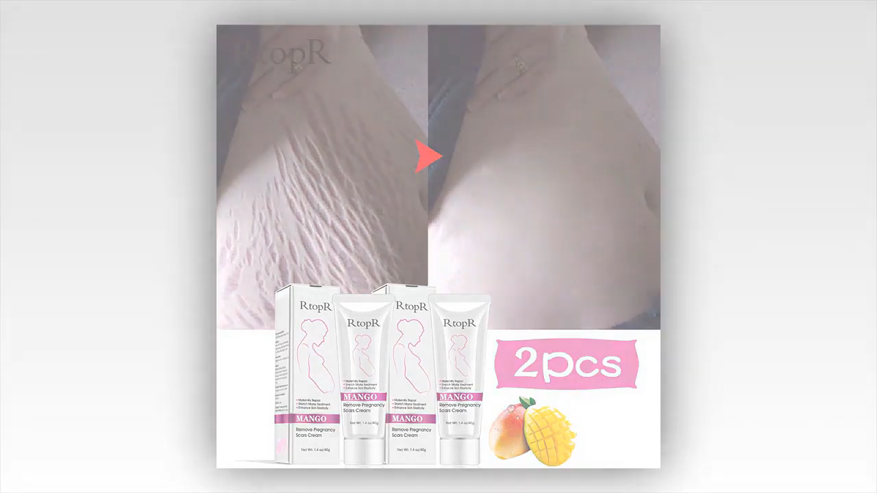 Stretch Marks How To Get Rid Of Stretch Marks Laser Stretch