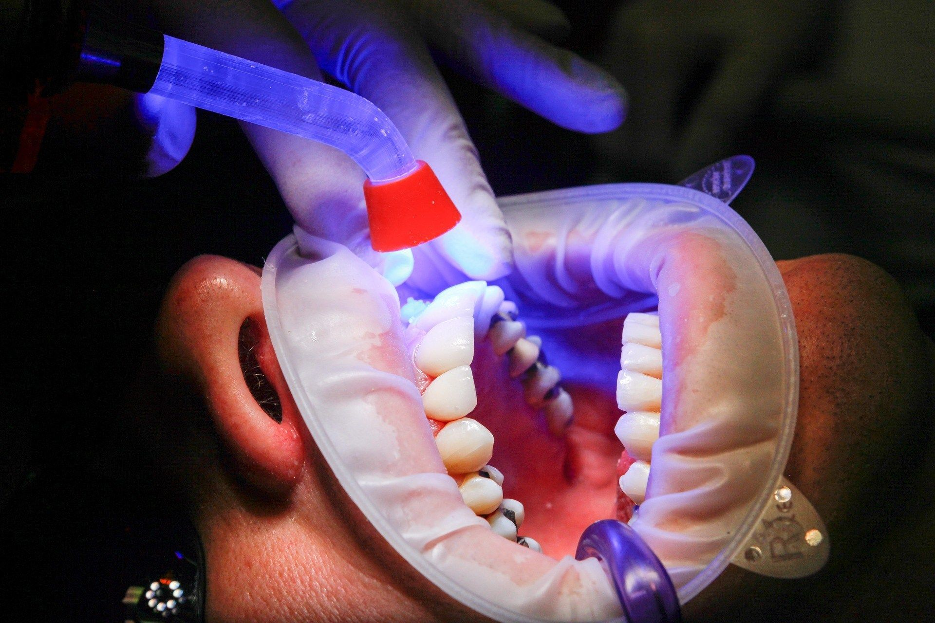 Dental Fillings What Are Your Choices And How Does It Work Dentalfillings Typesofdentalfillings De Dental Cosmetics After Wisdom Teeth Removal Dental Care