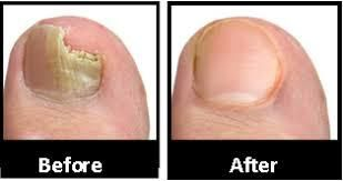 Tea Tree Oil Nail Fungus Before And After