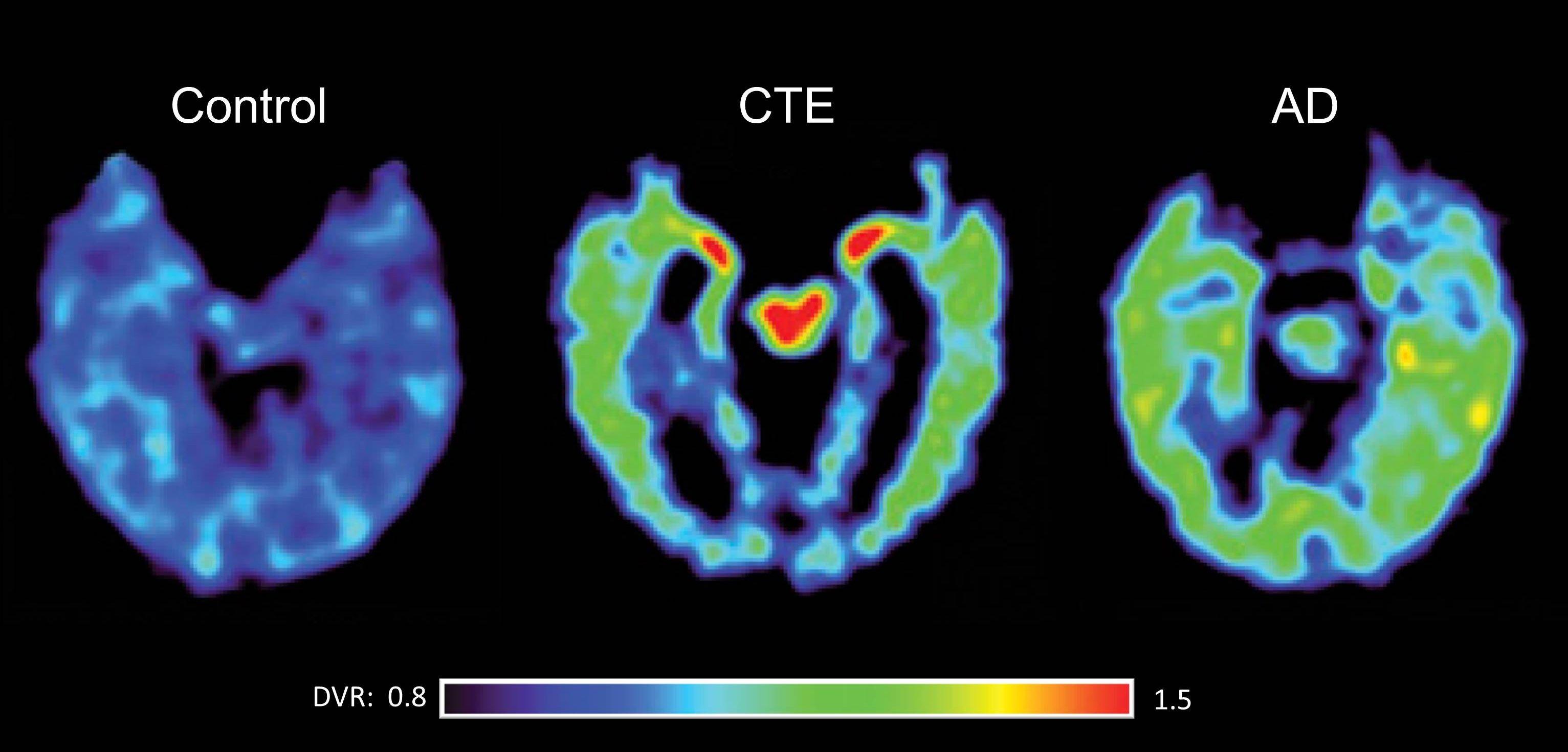 Brain Imaging Tackling Chronic Traumatic Encephalopathy Cte