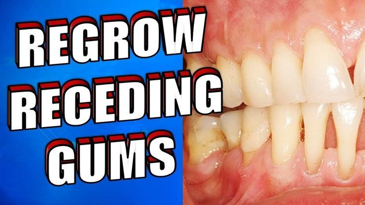 can you reverse periodontal disease naturally