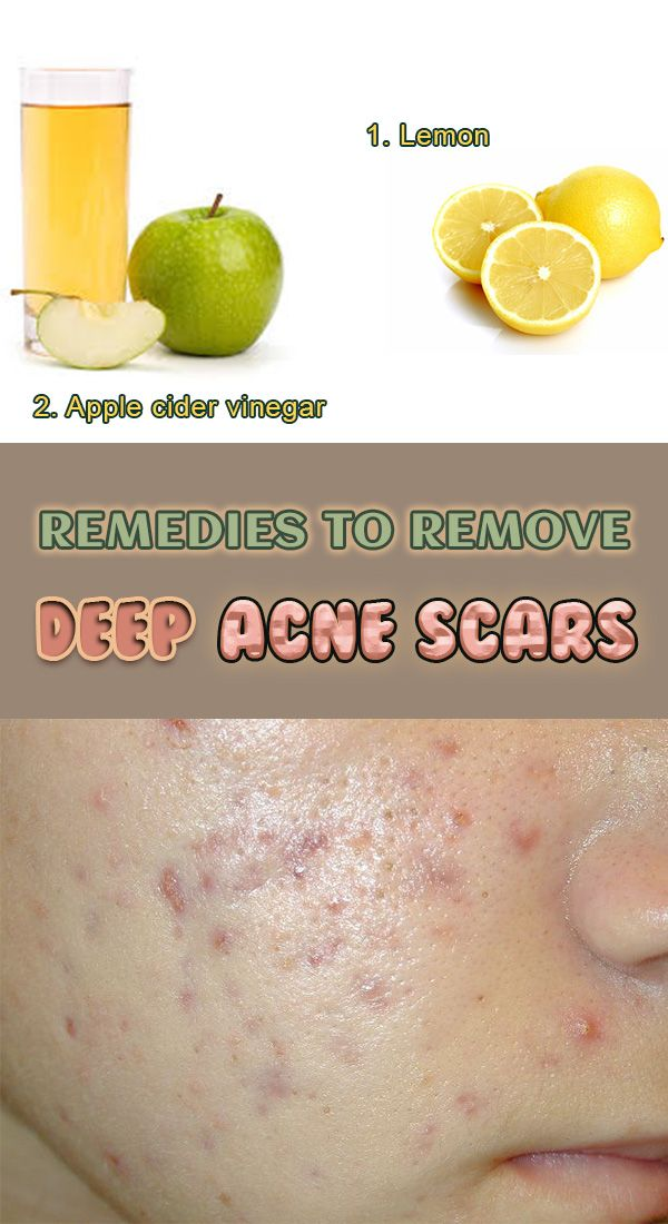 866b25f677b3c27f14065a50751befde - How To Get Rid Of Back Acne Scars Home Remedies
