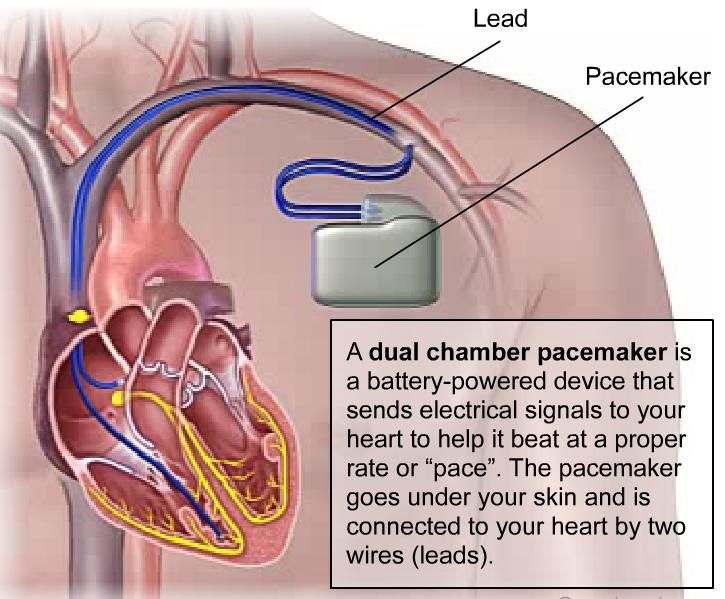 permanent cardiac pacing overview of devices and - 725×599
