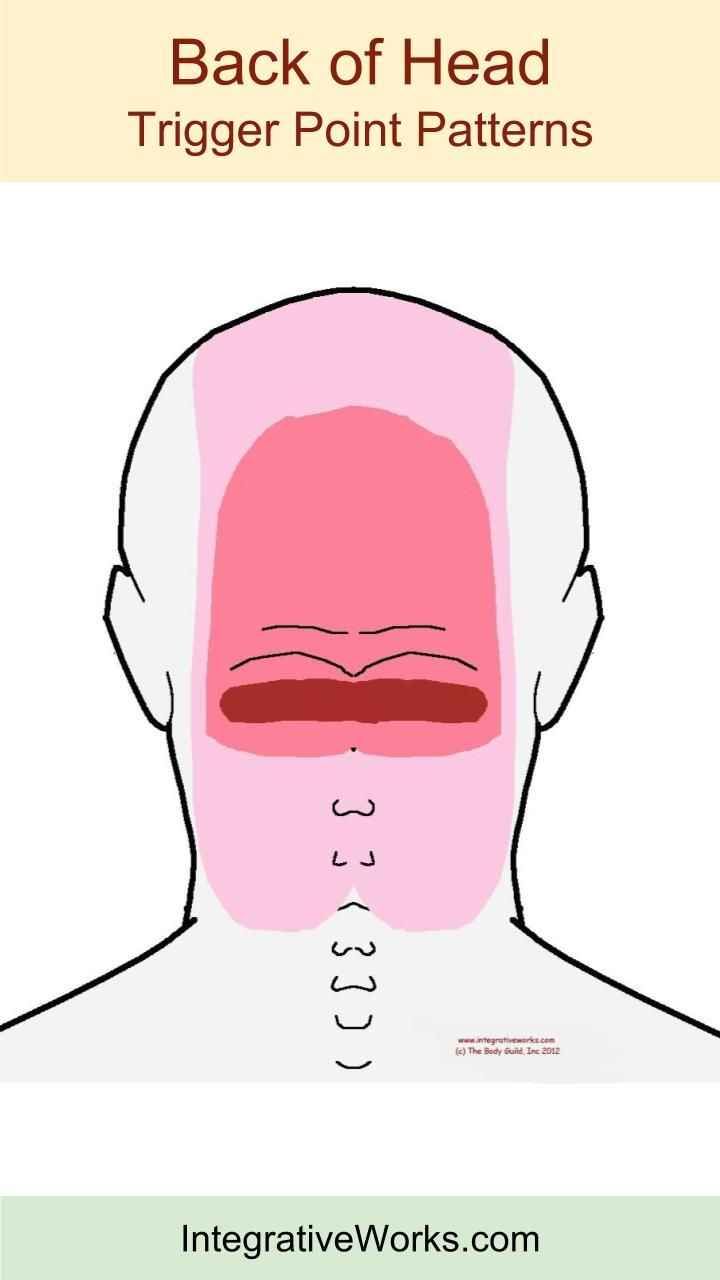 Understanding Trigger Points - Headache at the back of ...