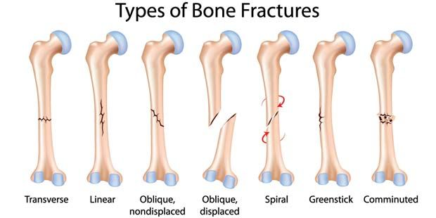glitchy-satan: Types of bone fractures. | First Aid | Pinterest ...