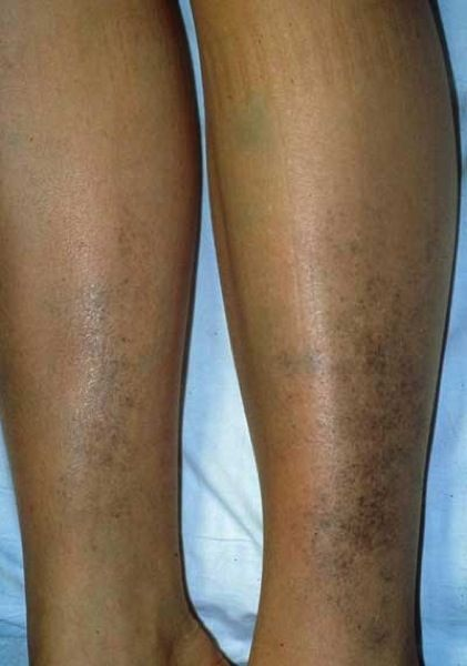 Hyperpigmentation on leg area | Hyperpigmentation | Melasma ...