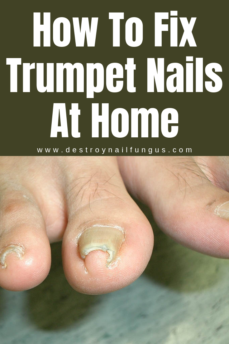 How To Fix Curved Toenails : curved, toenails, Everything, About, Pincer, Toenails, Remedies,, Curved, Toenails,, Nails